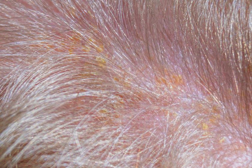 mit jelent a fejbőr a kereskedésben